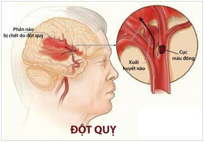 dot-quy-co-the-gay-parkinson